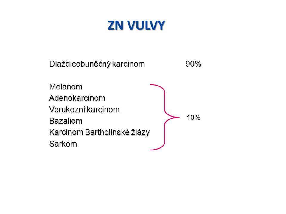 """1)Dlaždicový karcinom - reprezentuje 90 - 95 % ze všech vulvárních malignit - vyskytuje se ve více než 50 % případů u žen nad 70 let - jeho nejranější forma """"superficiální (časná) invaze T1a je definována jako nádor plošného rozsahu do 2 cm v průměru, s max."""