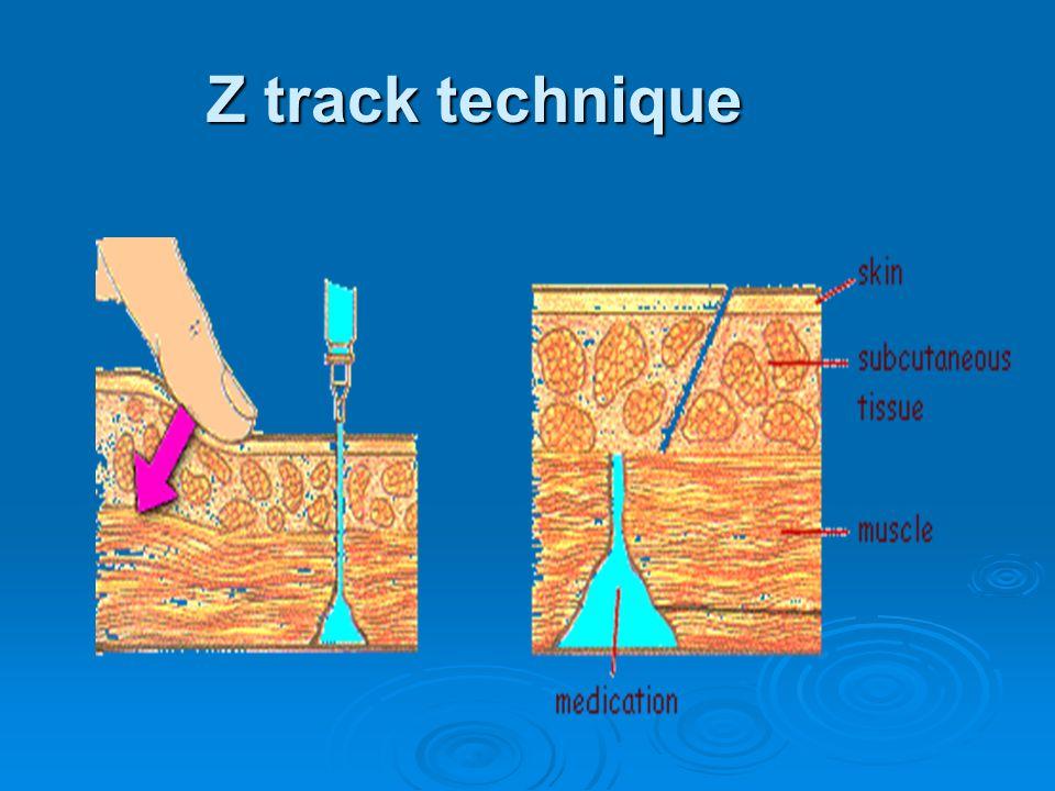 Z track technique