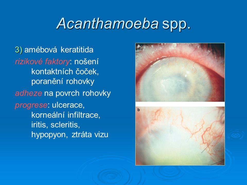 Acanthamoeba spp. 3) 3) amébová keratitida rizikové faktory: nošení kontaktních čoček, poranění rohovky adheze na povrch rohovky progrese: ulcerace, k