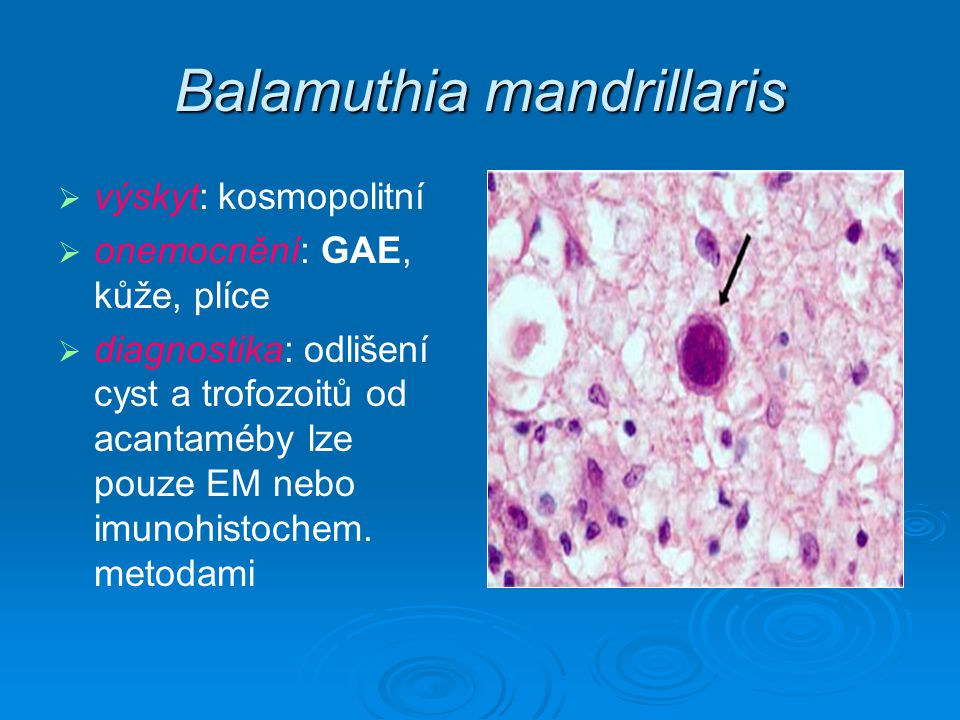 Balamuthia mandrillaris   výskyt: kosmopolitní   onemocnění: GAE, kůže, plíce   diagnostika: odlišení cyst a trofozoitů od acantaméby lze pouze EM nebo imunohistochem.