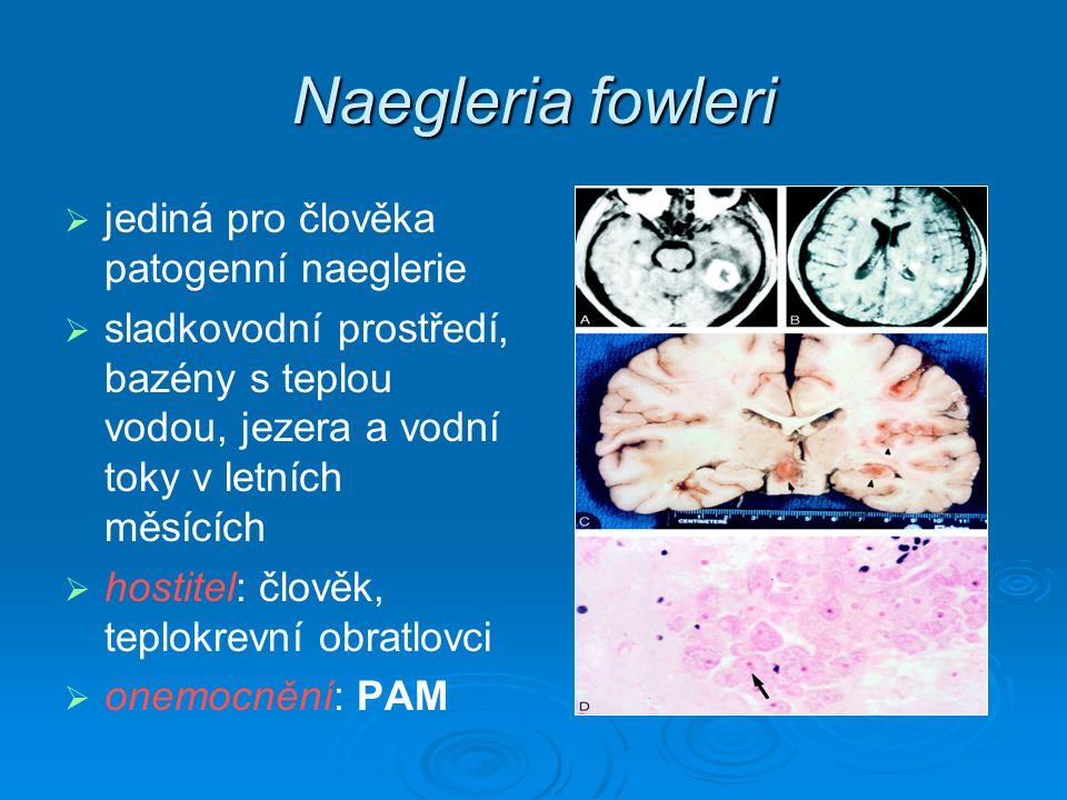 PRIMÁRNÍ AMÉBOVÁ MENINGOENCEFALITIDA   z plného zdraví   3 až 8 dní ID, časné symptomy   akutní fáze: bolesti v krku, ucpaný nos, těžké bolesti hlavy   progrese: horečka, zvracení, ztrnutí šíje   konečné stadium: křeče, delirium, smrt