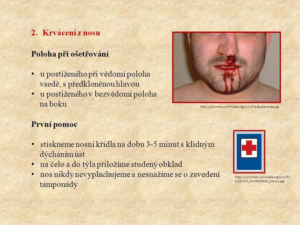 2.Krvácení z nosu Poloha při ošetřování u postiženého při vědomí poloha vsedě, s předkloněnou hlavou u postiženého v bezvědomí poloha na boku První po