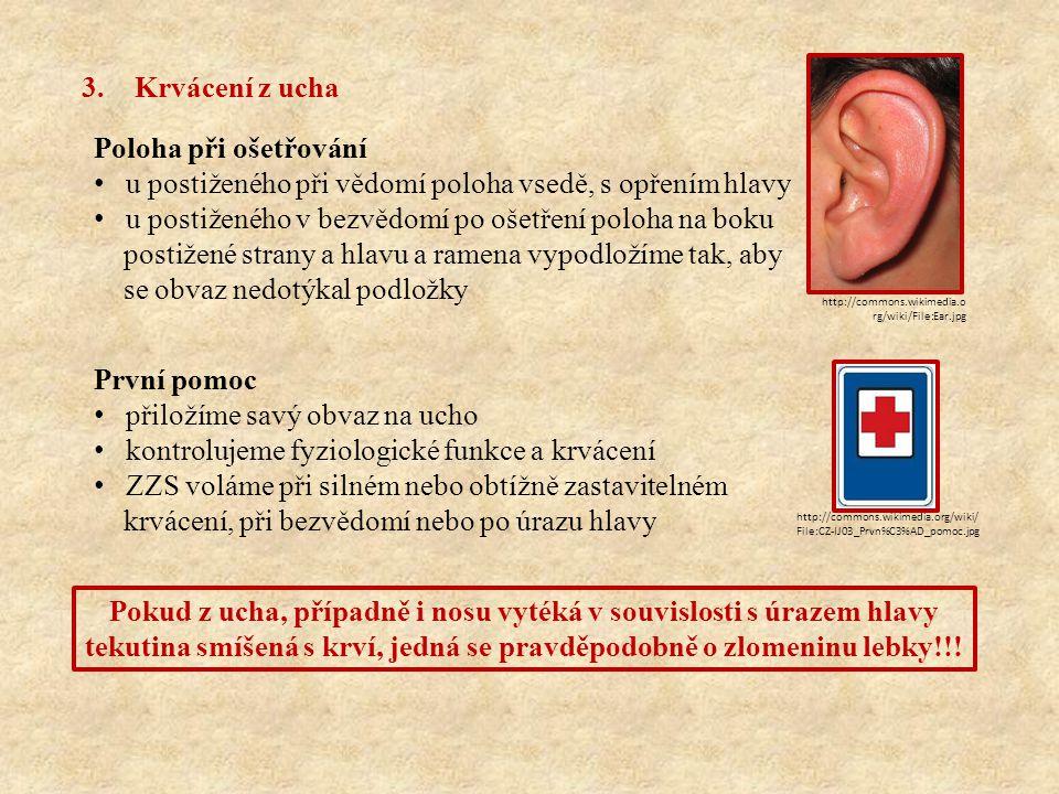 3.Krvácení z ucha Poloha při ošetřování u postiženého při vědomí poloha vsedě, s opřením hlavy u postiženého v bezvědomí po ošetření poloha na boku po
