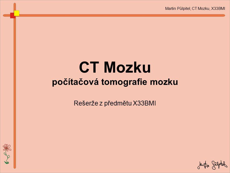 CT Mozku počítačová tomografie mozku Rešerže z předmětu X33BMI Martin Půlpitel, CT Mozku, X33BMI