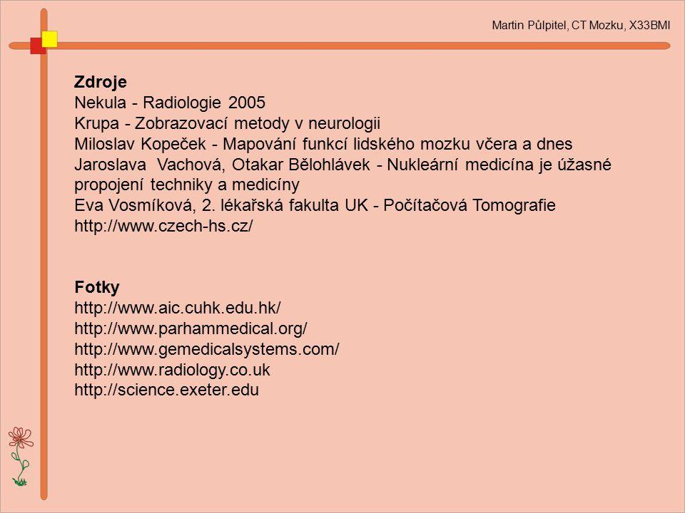 Martin Půlpitel, CT Mozku, X33BMI Zdroje Nekula - Radiologie 2005 Krupa - Zobrazovací metody v neurologii Miloslav Kopeček - Mapování funkcí lidského