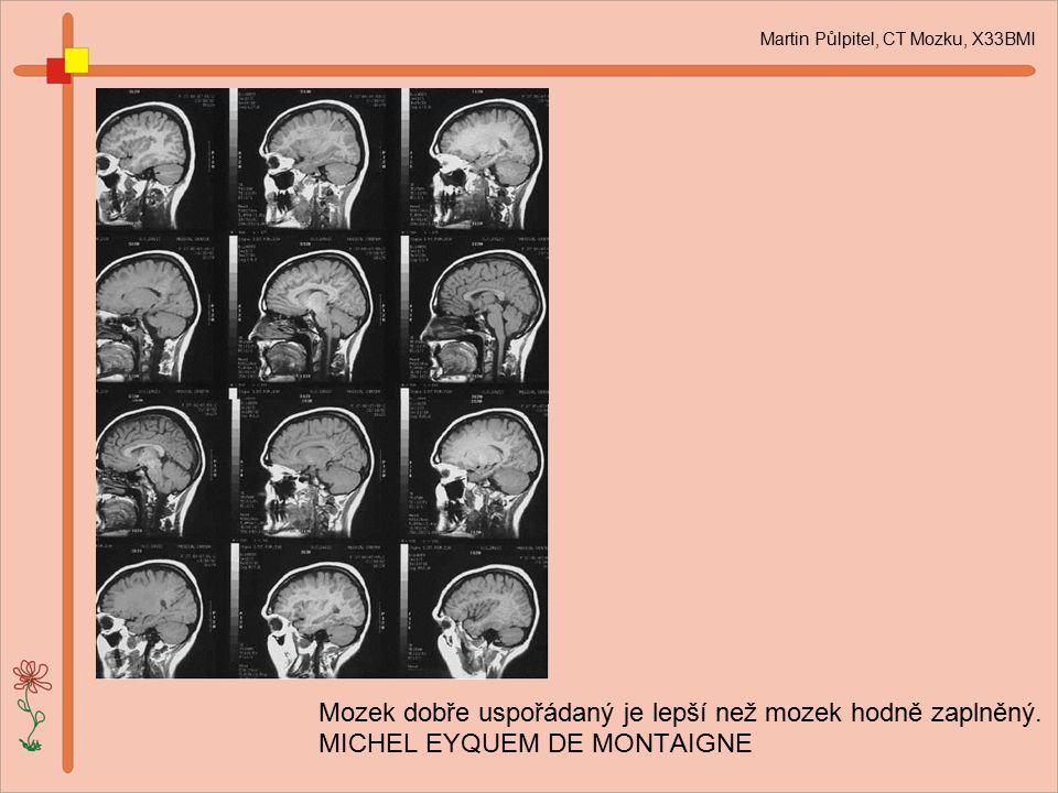 Mozek dobře uspořádaný je lepší než mozek hodně zaplněný. MICHEL EYQUEM DE MONTAIGNE Martin Půlpitel, CT Mozku, X33BMI