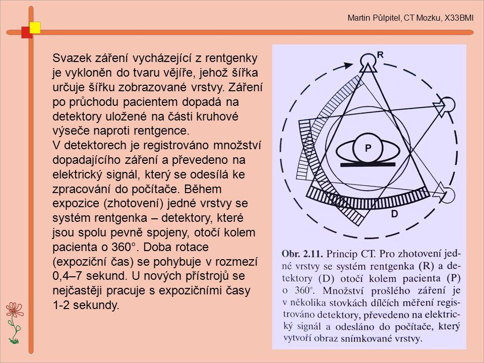 Martin Půlpitel, CT Mozku, X33BMI Svazek záření vycházející z rentgenky je vykloněn do tvaru vějíře, jehož šířka určuje šířku zobrazované vrstvy. Záře