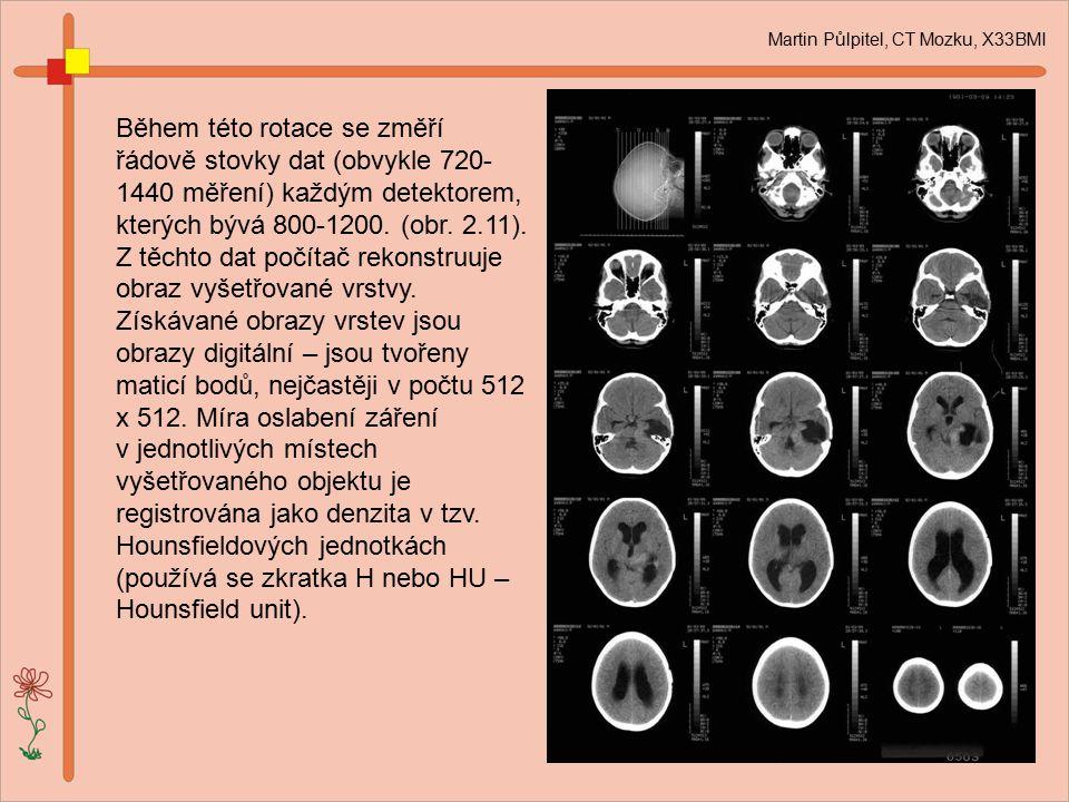 Martin Půlpitel, CT Mozku, X33BMI Během této rotace se změří řádově stovky dat (obvykle 720- 1440 měření) každým detektorem, kterých bývá 800-1200. (o