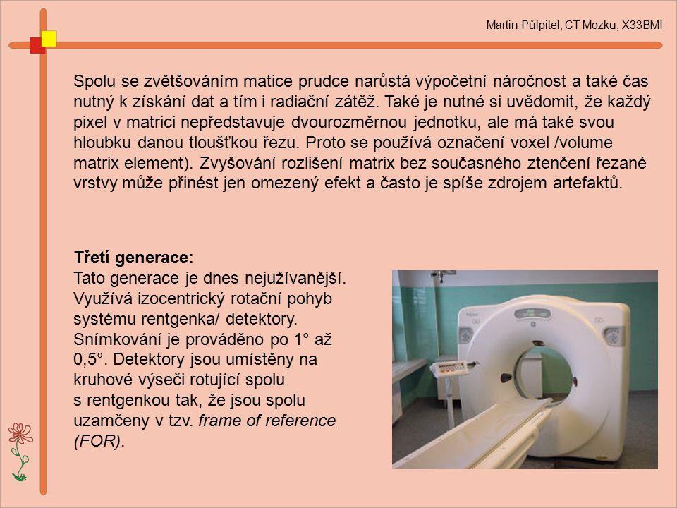 Martin Půlpitel, CT Mozku, X33BMI Spolu se zvětšováním matice prudce narůstá výpočetní náročnost a také čas nutný k získání dat a tím i radiační zátěž