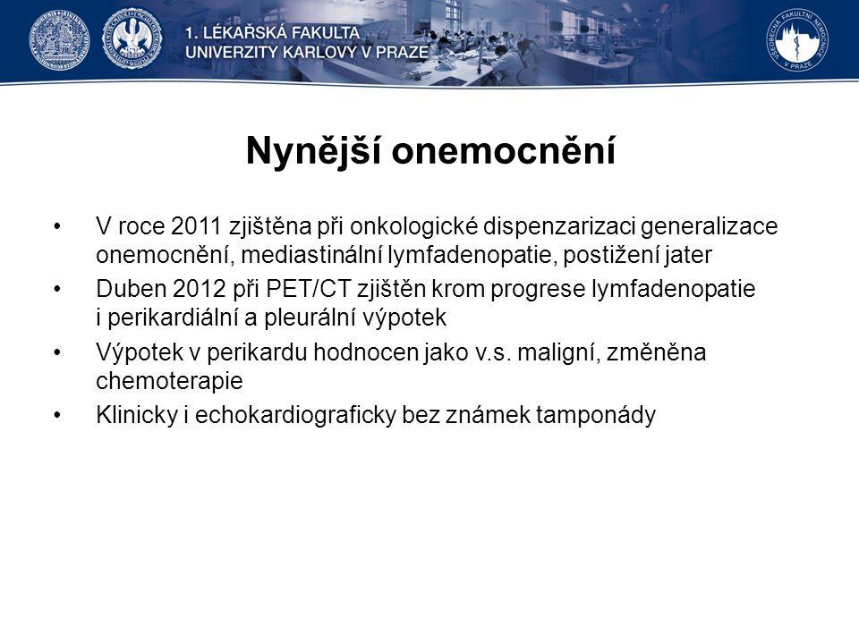 Nynější onemocnění V roce 2011 zjištěna při onkologické dispenzarizaci generalizace onemocnění, mediastinální lymfadenopatie, postižení jater Duben 2012 při PET/CT zjištěn krom progrese lymfadenopatie i perikardiální a pleurální výpotek Výpotek v perikardu hodnocen jako v.s.