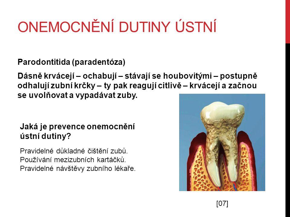 ONEMOCNĚNÍ DUTINY ÚSTNÍ Parodontitida (paradentóza) Dásně krvácejí – ochabují – stávají se houbovitými – postupně odhalují zubní krčky – ty pak reagují citlivě – krvácejí a začnou se uvolňovat a vypadávat zuby.