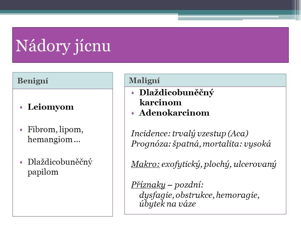 Nádory jícnu Benigní Maligní Leiomyom Fibrom, lipom, hemangiom … Dlaždicobuněčný papilom Dlaždicobuněčný karcinom Adenokarcinom Incidence: trvalý vzes