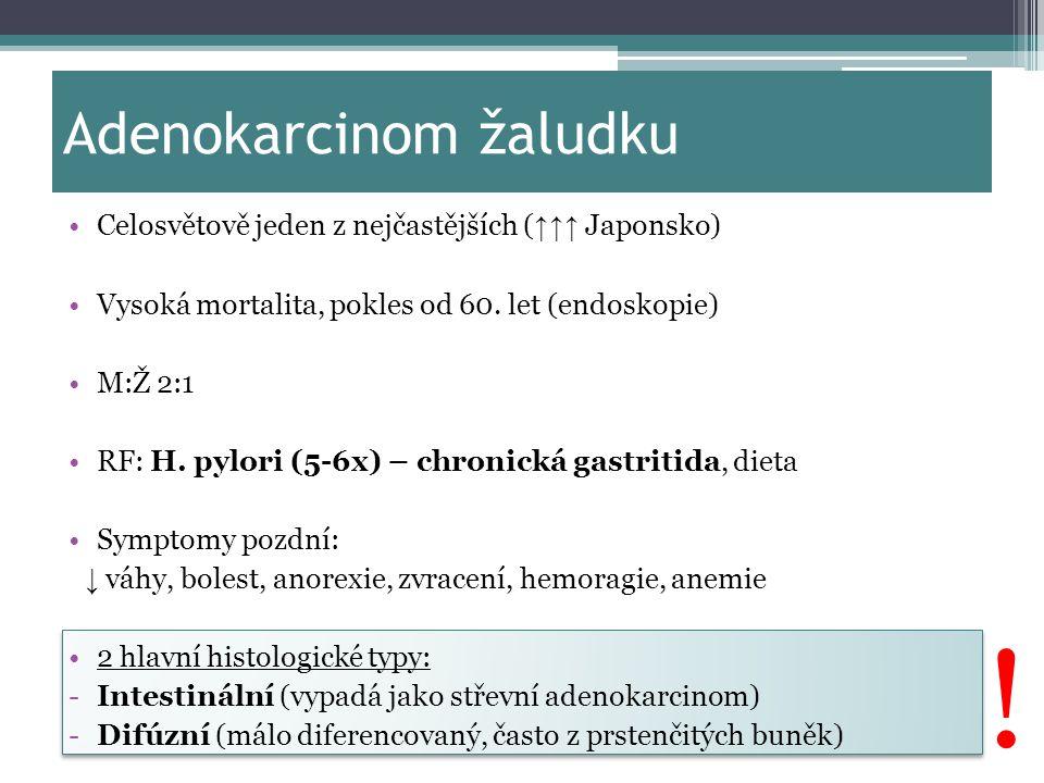 Adenokarcinom žaludku Celosvětově jeden z nejčastějších ( ↑↑↑ Japonsko) Vysoká mortalita, pokles od 60. let (endoskopie) M:Ž 2:1 RF: H. pylori (5-6x)