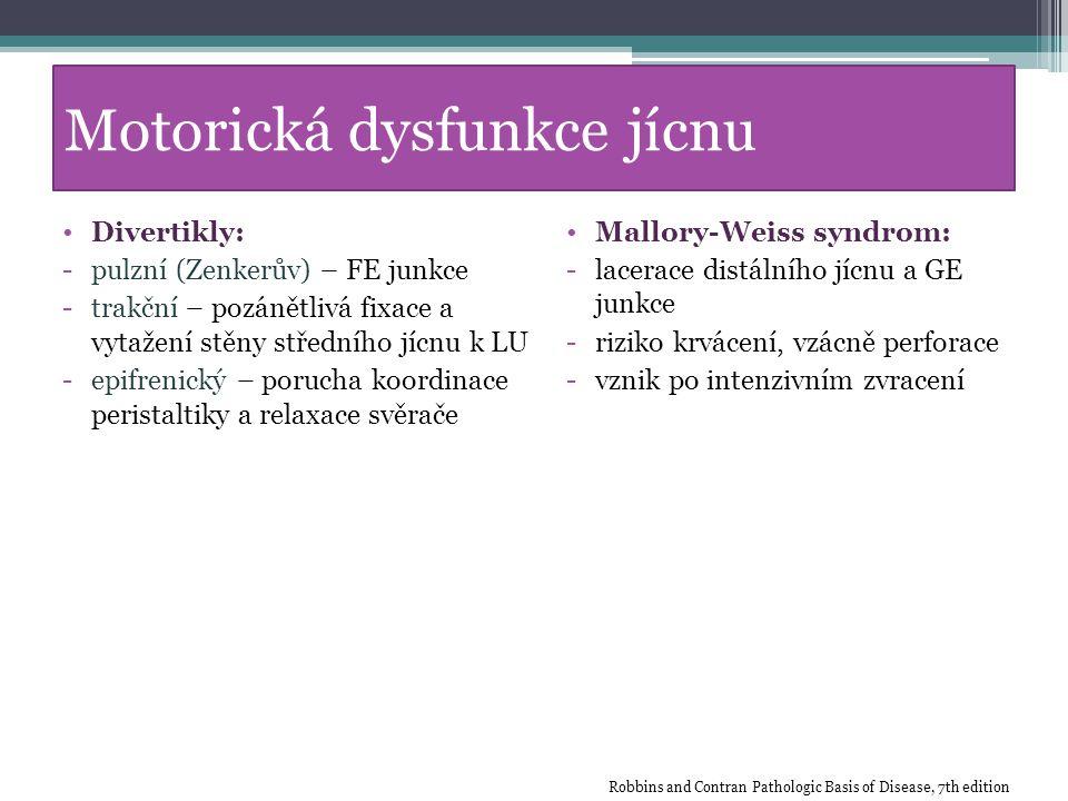 Motorická dysfunkce jícnu Divertikly: -pulzní (Zenkerův) – FE junkce -trakční – pozánětlivá fixace a vytažení stěny středního jícnu k LU -epifrenický