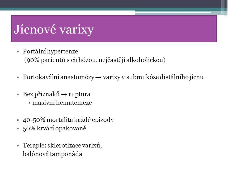 Jícnové varixy Portální hypertenze (90% pacientů s cirhózou, nejčastěji alkoholickou) Portokavální anastomózy → varixy v submukóze distálního jícnu Be