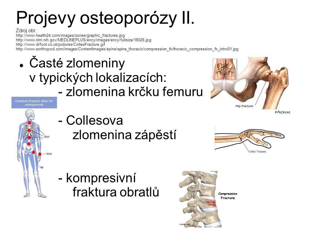 Projevy osteoporózy II. Zdroj obr.: http://www.health24.com/images/zones/graphic_fractures.jpg http://www.nlm.nih.gov/MEDLINEPLUS/ency/images/ency/ful