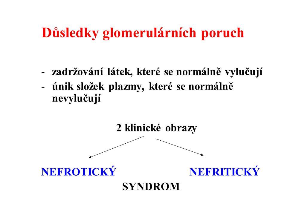 Důsledky glomerulárních poruch -zadržování látek, které se normálně vylučují -únik složek plazmy, které se normálně nevylučují 2 klinické obrazy NEFROTICKÝ NEFRITICKÝ SYNDROM