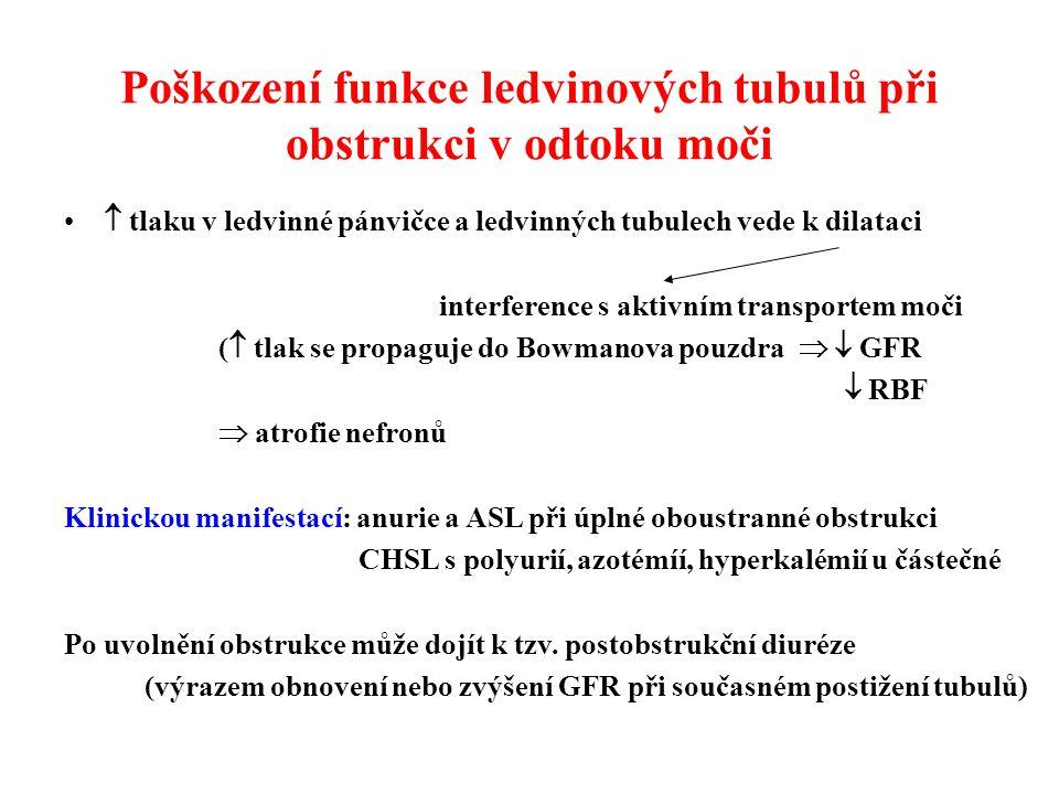 Poškození funkce ledvinových tubulů při obstrukci v odtoku moči  tlaku v ledvinné pánvičce a ledvinných tubulech vede k dilataci interference s aktivním transportem moči (  tlak se propaguje do Bowmanova pouzdra   GFR  RBF  atrofie nefronů Klinickou manifestací: anurie a ASL při úplné oboustranné obstrukci CHSL s polyurií, azotémíí, hyperkalémií u částečné Po uvolnění obstrukce může dojít k tzv.
