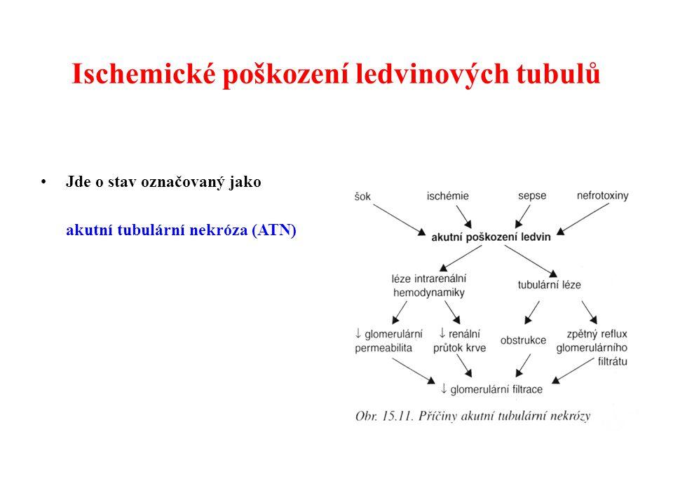 Ischemické poškození ledvinových tubulů Jde o stav označovaný jako akutní tubulární nekróza (ATN)