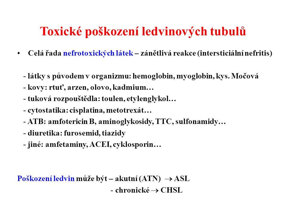 Toxické poškození ledvinových tubulů Celá řada nefrotoxických látek – zánětlivá reakce (intersticiální nefritis) - látky s původem v organizmu: hemoglobin, myoglobin, kys.