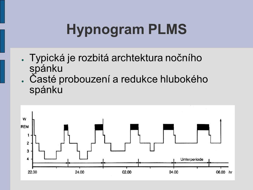 Hypnogram PLMS ● Typická je rozbitá archtektura nočního spánku ● Časté probouzení a redukce hlubokého spánku