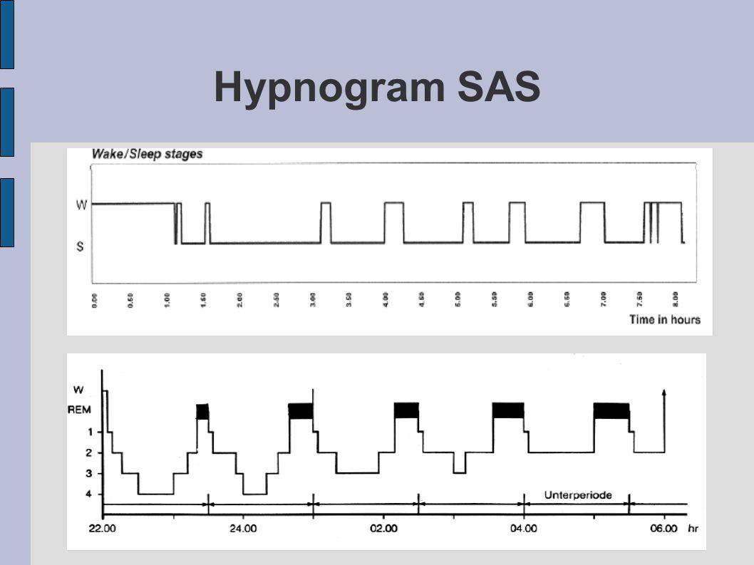 Hypnogram SAS