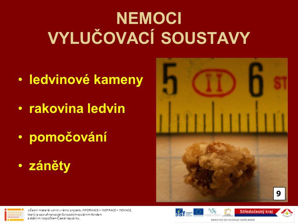 Použité obrázky: obr.č.1- http://commons.wikimedia.org/wiki/File:Illu_urinary_system_numbers.svghttp://commons.wikimedia.org/wiki/File:Illu_urinary_system_numbers.svg Volně šiřitelné obr.č.2- http://commons.wikimedia.org/wiki/File:Illu_urinary_system_numbers.svghttp://commons.wikimedia.org/wiki/File:Illu_urinary_system_numbers.svg Volně šiřitelné obr.č.3- http://commons.wikimedia.org/wiki/File:Trying_new_kidneys.pnghttp://commons.wikimedia.org/wiki/File:Trying_new_kidneys.png Volně šiřitelné obr.č.4- http://commons.wikimedia.org/wiki/File:Kidney-numbered.pnghttp://commons.wikimedia.org/wiki/File:Kidney-numbered.png Volně šiřitelné obr.č.5- http://commons.wikimedia.org/wiki/File:Gray1120-ureters.pnghttp://commons.wikimedia.org/wiki/File:Gray1120-ureters.png Volně šiřitelné obr.č.6- http://commons.wikimedia.org/wiki/File:BPH.pnghttp://commons.wikimedia.org/wiki/File:BPH.png Volně šiřitelné obr.č.7- http://commons.wikimedia.org/wiki/File:Urinbecher.jpghttp://commons.wikimedia.org/wiki/File:Urinbecher.jpg Creative Commons Attribution-Share Alike 3.0 Unported license Učební materiál vznikl v rámci projektu INFORMACE – INSPIRACE – INOVACE, který je spolufinancován Evropským sociálním fondem a státním rozpočtem České republiky.