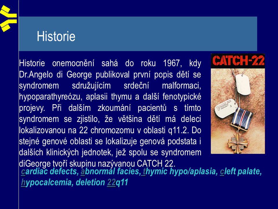 Historie Historie onemocnění sahá do roku 1967, kdy Dr.Angelo di George publikoval první popis dětí se syndromem sdružujícím srdeční malformaci, hypop