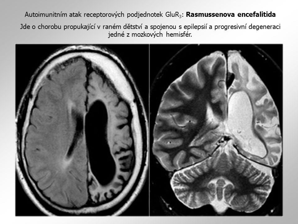 těžký otok pravé mozkové hemisféry, posun středových struktur Autoimunitním atak receptorových podjednotek GluR 3 : Rasmussenova encefalitida Jde o ch