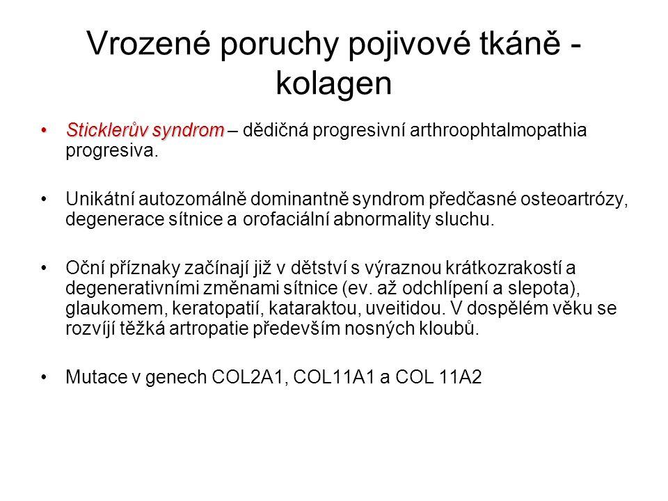 Vrozené poruchy pojivové tkáně - kolagen Sticklerův syndromSticklerův syndrom – dědičná progresivní arthroophtalmopathia progresiva. Unikátní autozomá
