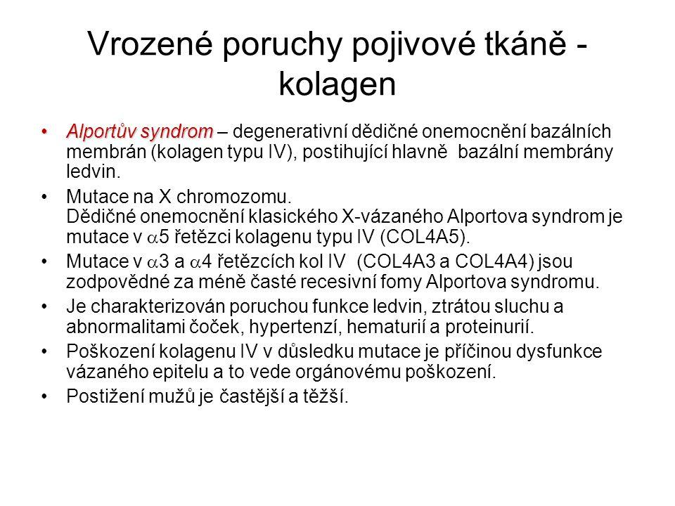 Vrozené poruchy pojivové tkáně - kolagen Alportův syndromAlportův syndrom – degenerativní dědičné onemocnění bazálních membrán (kolagen typu IV), post