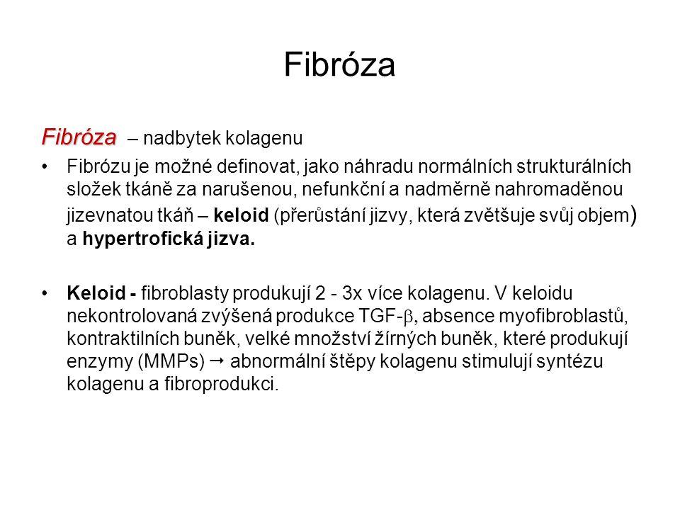 Fibróza Fibróza Fibróza – nadbytek kolagenu Fibrózu je možné definovat, jako náhradu normálních strukturálních složek tkáně za narušenou, nefunkční a