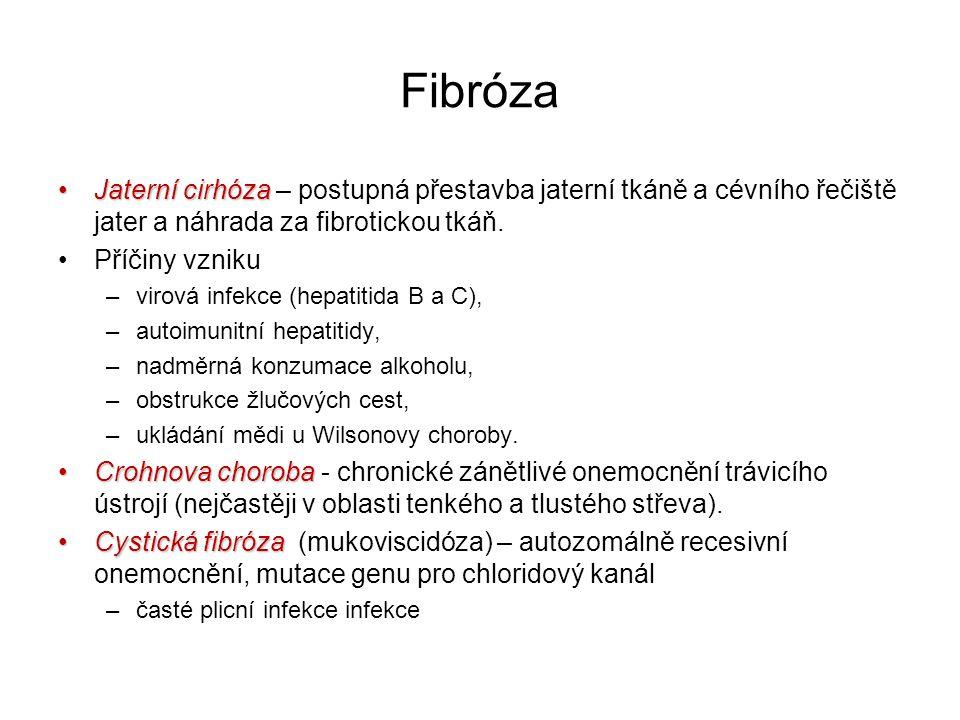 Fibróza Jaterní cirhózaJaterní cirhóza – postupná přestavba jaterní tkáně a cévního řečiště jater a náhrada za fibrotickou tkáň. Příčiny vzniku –virov