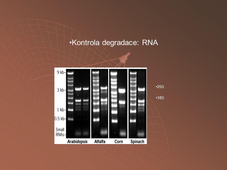 Kontrola degradace: RNA 25S 18S