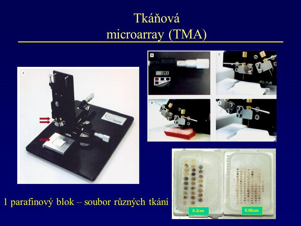 Tkáňová microarray (TMA) 0.06cm 0.2cm 1 parafinový blok – soubor různých tkání