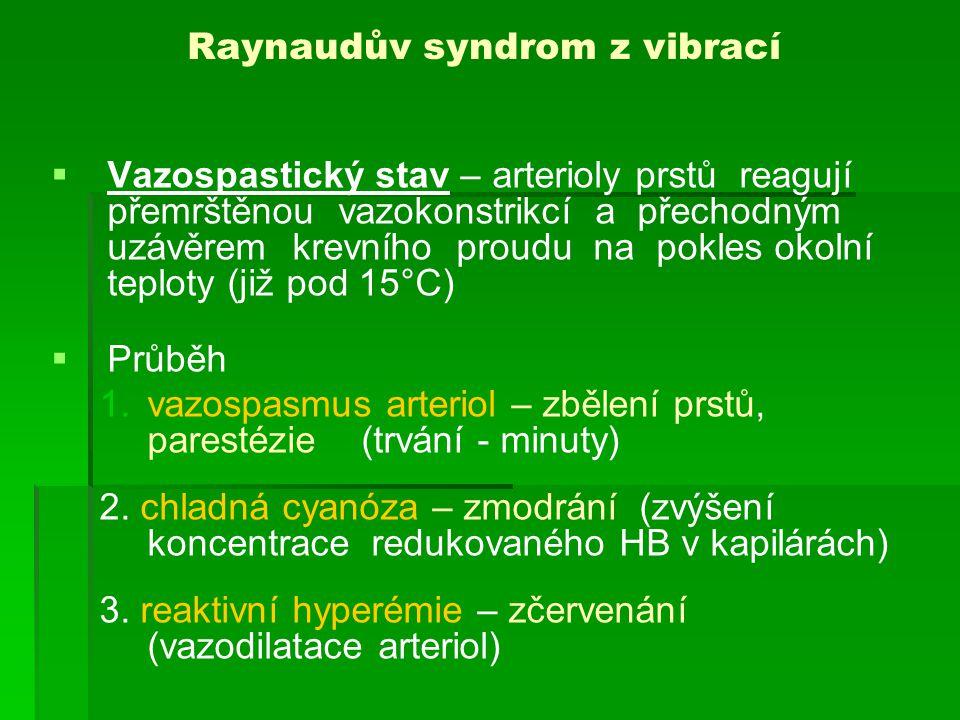 Raynaudův syndrom z vibrací - rozvoj   Zpočátku Raynaudův sy asymetrický, jednostranný, začíná na distálních článcích 4.