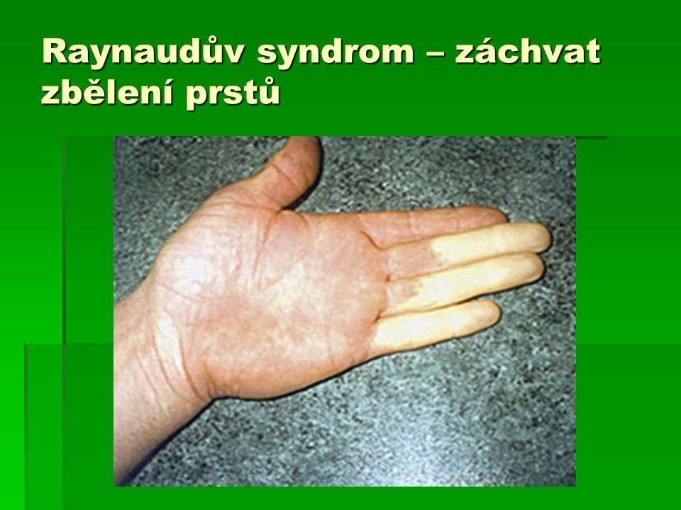 Raynaudův syndrom – ztluštění kůže na rukou, počínající akroskleroza brněním prstů, snížení citlivosti, křeče, svalová slabost HKK, poruchy reflexů HKK, jemnébrněním prstů, snížení citlivosti, křeče, svalov brněním prstů, snížení citlivosti, křeče, svalová slabost HKK, poruchy reflexů HKK, jemné á slabost HKK, poruchy reflexů HKK, jemné