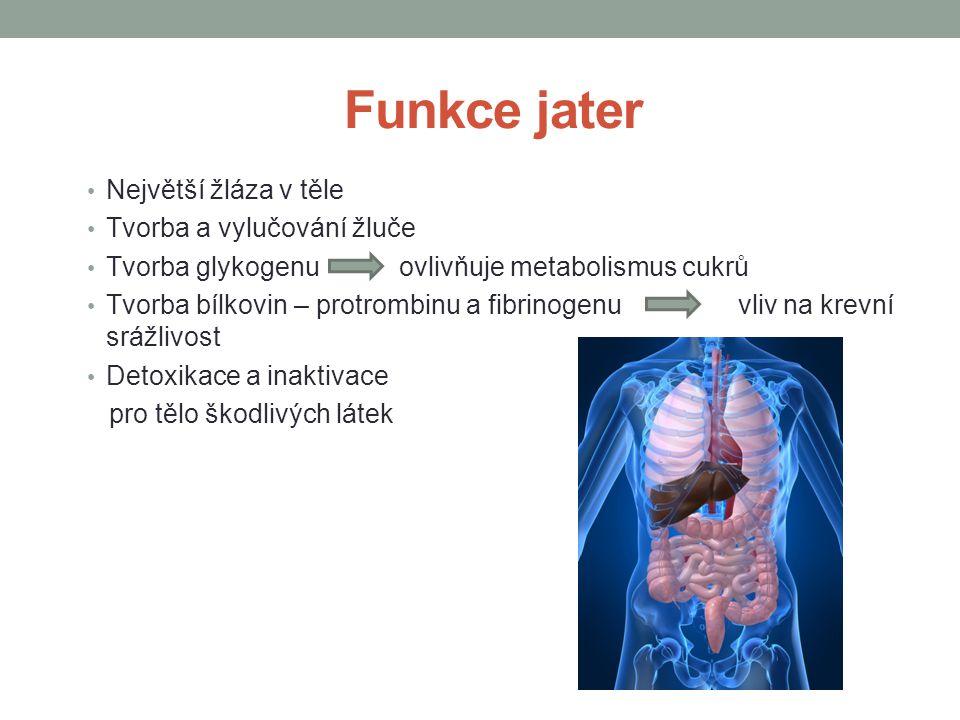 Charakteristika onemocnění chronické onemocnění fibrotizace jaterní tkáně snížení metabolické činnosti jater Komplikace Krvácení z jícnových varixů Jaterní koma Karcinom jater