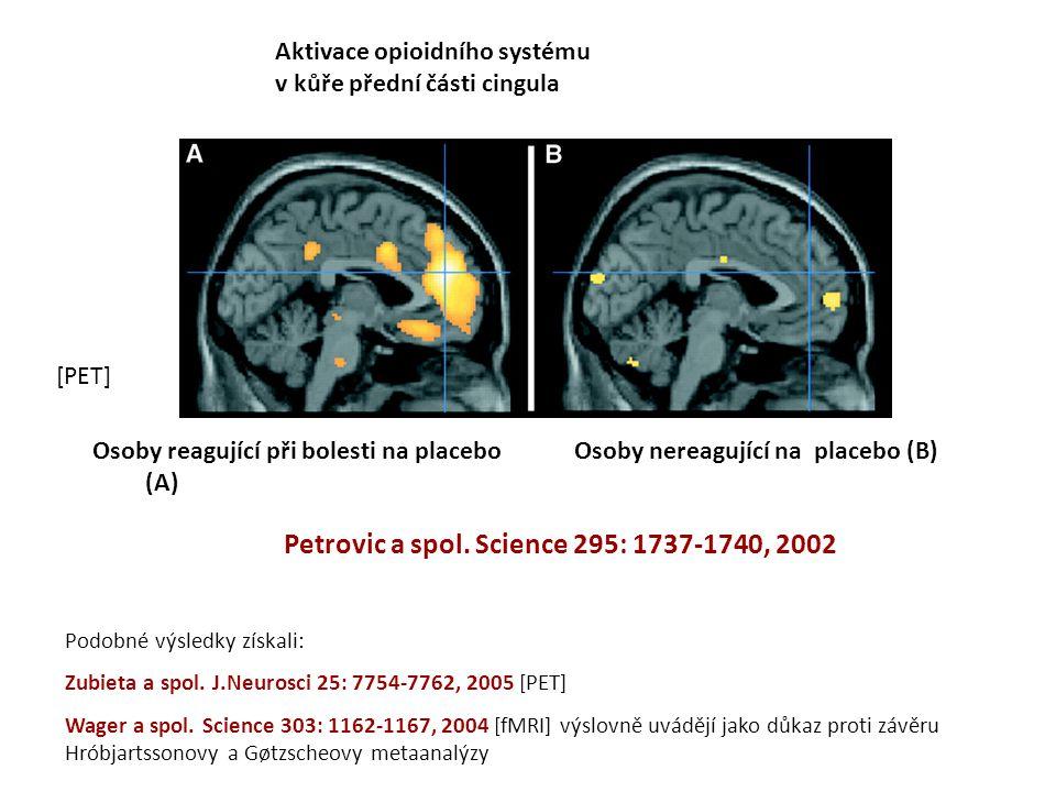 Aktivace opioidního systému v kůře přední části cingula Osoby reagující při bolesti na placebo (A) Osoby nereagující na placebo (B) Petrovic a spol. S