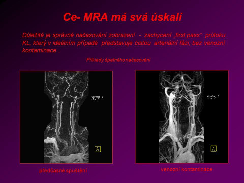 """Ce- MRA má svá úskalí Důležité je správné načasování zobrazení - zachycení """"first pass"""" průtoku KL, který v ideálním případě představuje čistou arteri"""