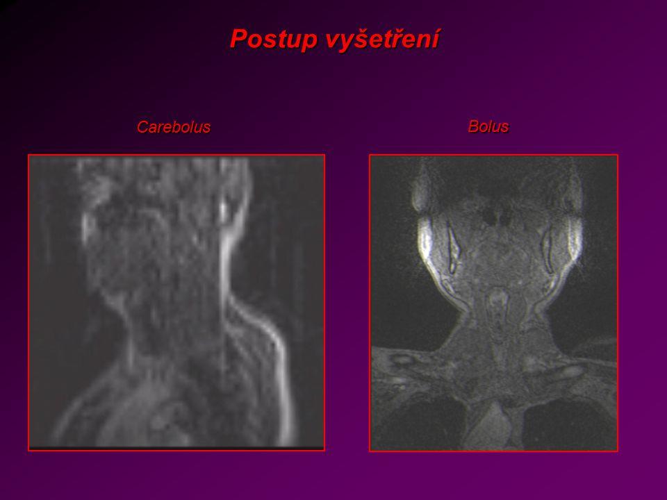 Postup vyšetření Carebolus Bolus