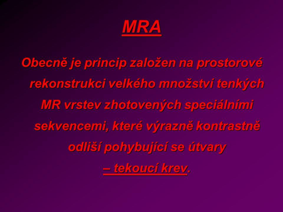 MRA Obecně je princip založen na prostorové rekonstrukci velkého množství tenkých MR vrstev zhotovených speciálními sekvencemi, které výrazně kontrast