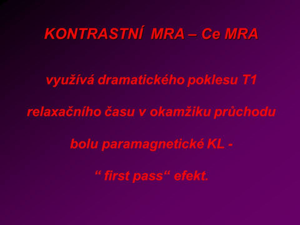 """KONTRASTNÍ MRA – Ce MRA využívá dramatického poklesu T1 relaxačního času v okamžiku průchodu bolu paramagnetické KL - """" first pass"""" efekt."""