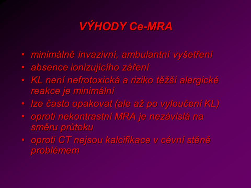 VÝHODY Ce-MRA minimálně invazivní, ambulantní vyšetřeníminimálně invazivní, ambulantní vyšetření absence ionizujícího zářeníabsence ionizujícího zářen