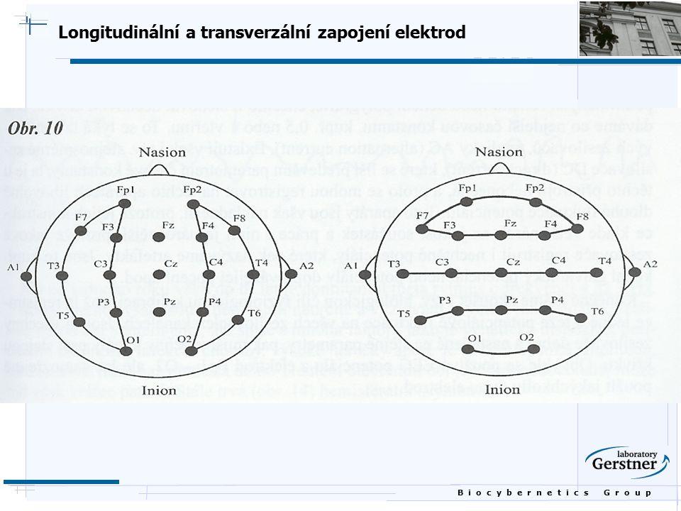 B i o c y b e r n e t i c s G r o u p Longitudinální a transverzální zapojení elektrod