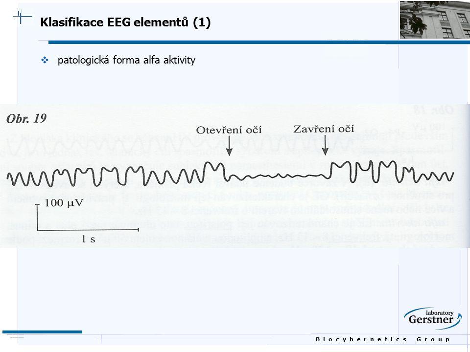 B i o c y b e r n e t i c s G r o u p Klasifikace EEG elementů (1)  patologická forma alfa aktivity