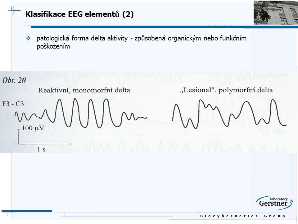 B i o c y b e r n e t i c s G r o u p Klasifikace EEG elementů (2)  patologická forma delta aktivity - způsobená organickým nebo funkčním poškozením