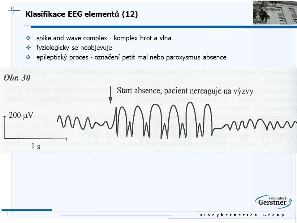 B i o c y b e r n e t i c s G r o u p Klasifikace EEG elementů (12)  spike and wave complex - komplex hrot a vlna  fyziologicky se neobjevuje  epil