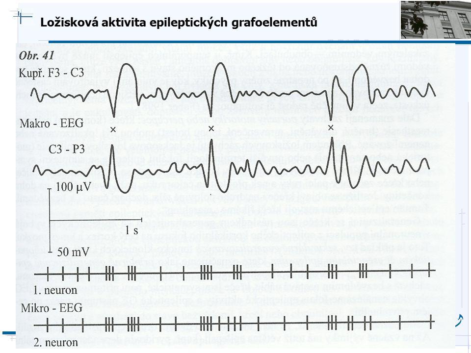 B i o c y b e r n e t i c s G r o u p Ložisková aktivita epileptických grafoelementů
