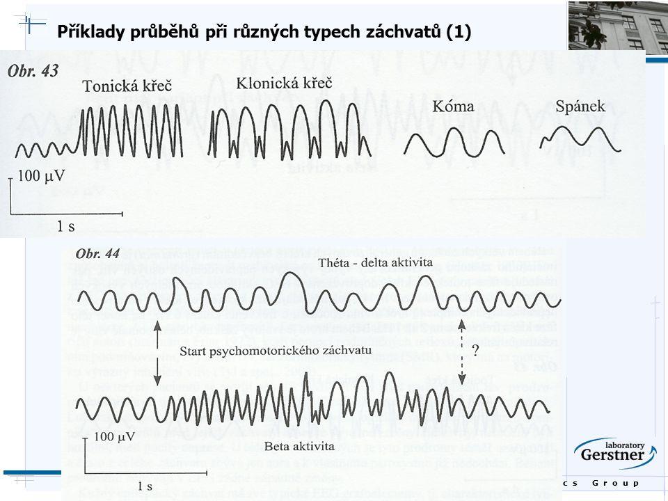 B i o c y b e r n e t i c s G r o u p Příklady průběhů při různých typech záchvatů (1)